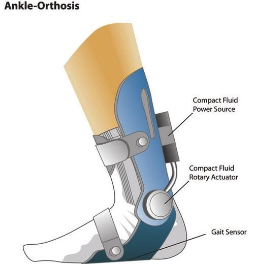 The development of a light, compact, efficient, ultra-low-powered, untethered Ankle Foot Orthosis (AFO) system has the potential to yield significant advances in orthotic control mechanisms and treatment strategies.