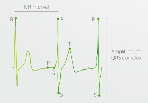 Typical ECG waveform (normal sinus rhythm) showing standard features, including those measured by the LifeTouch HRV011.