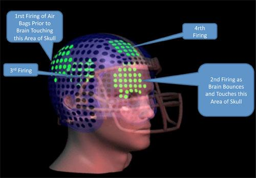 Airbags inside the helmet are pressurized sequentially, enabling the helmet to provide cushioning as the brain moves back and forth within the skull.   (Source: Concussion Mitigation Technologies LLC)