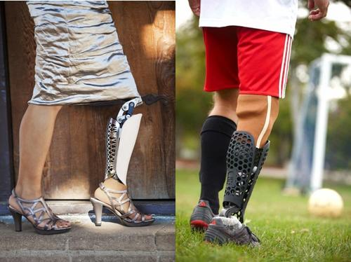 Rather than take a one-size-fits-all approach to prosthetics design, Bespoke employs 3D scanning and 3D printing to create specialized coverings that restore the lost contour of a leg while injecting a personal flair.   (Source: Bespoke/3D Systems)