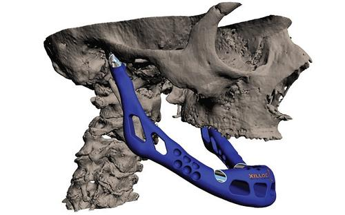 Using a 3D model of a patient's lower mandible, a medical team, in partnership with LayerWise, built and 3D printed an artificial jaw implant structure. The jaw, constructed with titanium powder, incorporates articulated joints and dedicated features and has been hailed as one of the first complete patient-specific implants.   (Source: LayerWise)