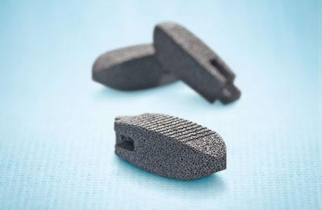 The TM Ardis Interbody System is a lumbar spine implant made with Zimmer's tantalum-based Trabecular Metal (TM) technology, a highly porous metallic substance with characteristics similar to the spongy type of bone.  (Source: Zimmer)