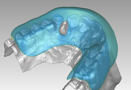 Geomagic Studio is used to warp and align the existing mouthguard to the scan model of the new impression. 