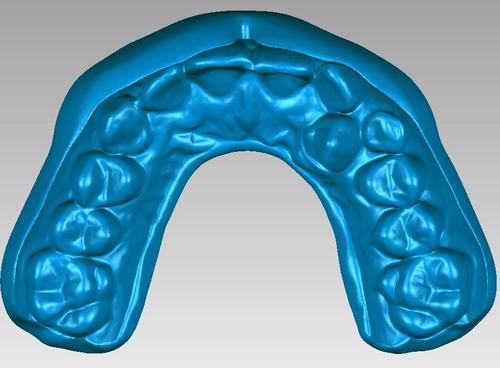 A watertight 3D model of an individually-customized mouthguard that provides better protection and comfort for the athlete. Using 3D digital technologies, creation time is reduced from a day to an hour or less.