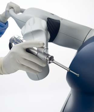MAKO Surgical's RIO Robotic Arm Interactive Orthopedic System is designed to help surgeons during knee resurfacing, a minimally invasive but difficult operation done before placing implants, an alternative to more extensive and invasive total knee replacement. Knee resurfacing retains healthy bone and tissue, preserves the ligaments, and speeds recovery time. The RIO Robotic Arm provides real-time, interoperative visual, tactile, and auditory feedback, fostering more precise positioning of implants. (Source: MAKO Surgical)