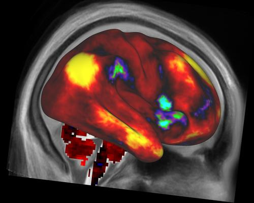 A map of average 'functional connectivity' in the human cerebral cortex, including subcortical gray matter. Regions shown in yellow are functionally connected to a 'seed' location in the parietal lobe of the right hemisphere, and regions shown in red and orange are weakly connected or not connected at all.   (Source: WU/Minn Consortium)