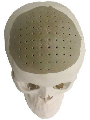 A 3D-printed skull made out of polyetherketoneketone was used as an implant to replace 75 percent of an unknown patient's missing skull.  (Source: Resources2.news.com)