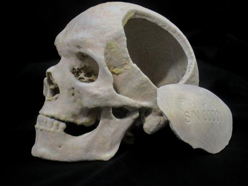 A 3D printed skull and customized implant made using Bespoke Modeling can be usedas a demonstration tool for patients or as a practice tool for surgeons.(Source: 3D Systems)