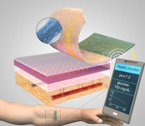 Threads invented by researchers at Tufts University penetrate multiple layers of tissue to sample interstitial fluid and direct it to sensing threads that collect data, such as pH and glucose levels. Conductive threads then deliver the data to a flexible wireless transmitter sitting on top of the skin.  (Nano Lab, Tufts University