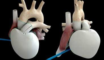 Will Artificial Hearts Be Next Big Thing in Medtech?