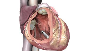 Medtronic Wins EU Approval for Leadless Pacemaker