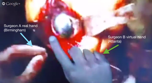 Google Glass Enables Surgeons To Consult Remotely