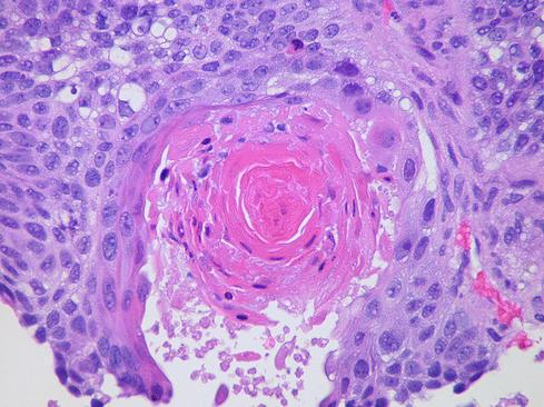 (Source: Pulmonary Pathology/Flickr)
